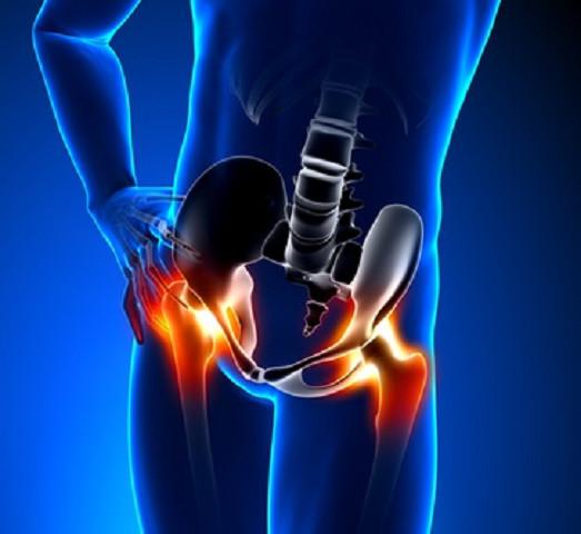 骨盤の歪みがO脚やX脚を引き起こします
