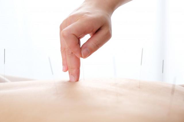 痛くない鍼施術で血流を改善して不調を解消します