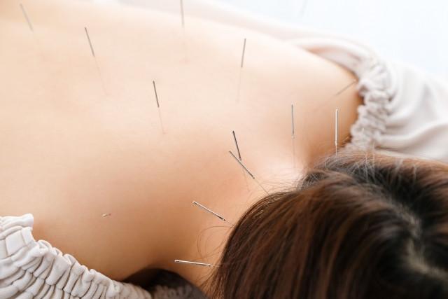 鍼灸施術で血流を促して症状を改善します